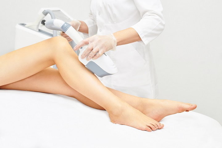 Behandlung mit IPL an den Beinen